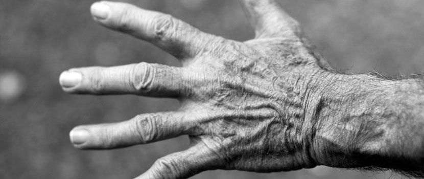 artrita reumatoidă decât tratată