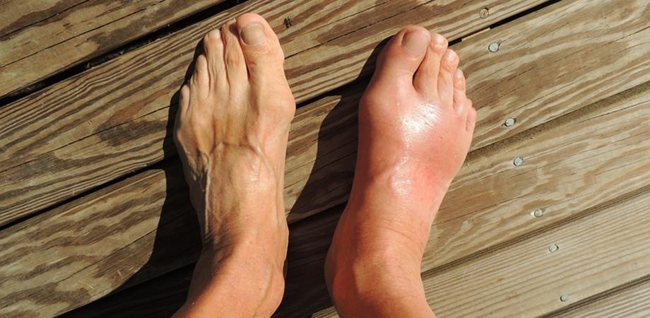 remedii de durere articulară pentru gută