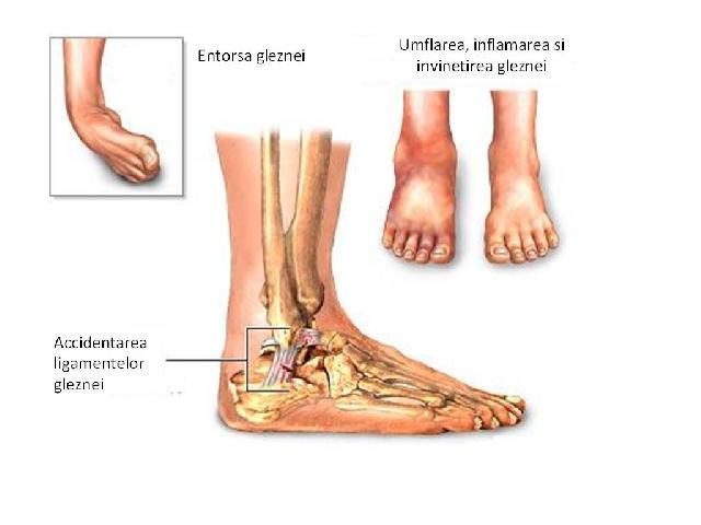 durere severă în mușchii articulației cotului