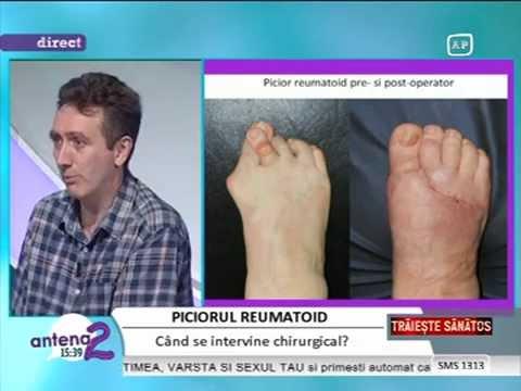 tratamentul artrozei 3 grade deget de la picior